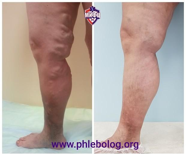 Laser treatment for huge varicose veins with venous eczema