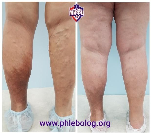 Treatment of varicose veins and venous eczema with RFA