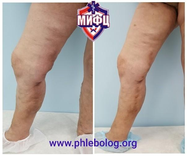 Treatment of acute ascending thrombophlebitis in the BPV pool on the right
