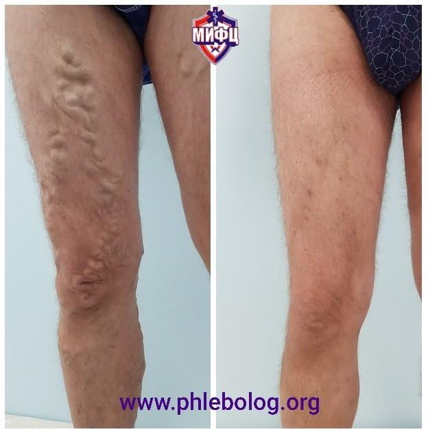Treatment of varicose veins in men