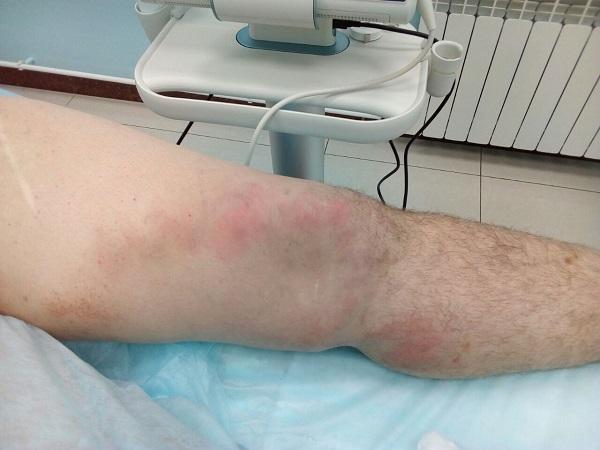 trattamento della tromboflebite laser