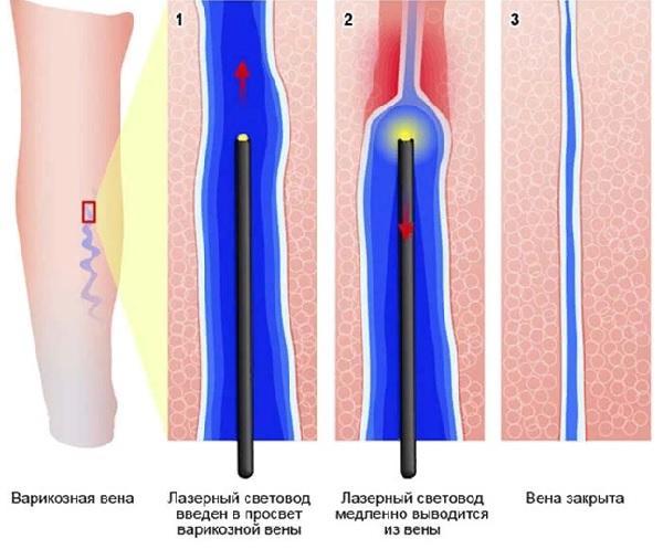 Laser treatment of varicose veins