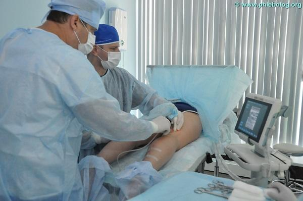 Endovasal laser procedure is performed by surgeons phlebologists Semenov A.Yu. and Kalachev I.I.