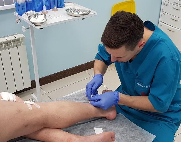 Microsclerotherapy performed by the phlebologist MIFC Raskin V.V.