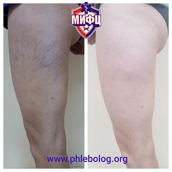 Photos before and after removal of spider veins on the left thigh