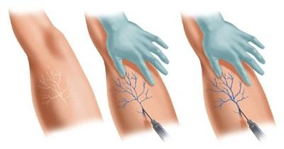Microsclerotherapy procedure for telangiectasis