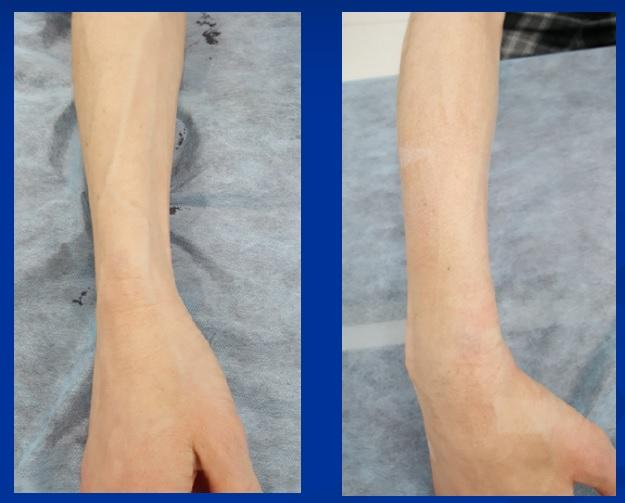 Veins of the right hand before and after sclerotherapy (photo before and after)