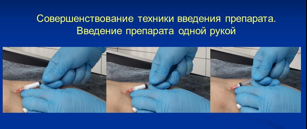 Introduction of sclerosant to the dilated vein in the arm