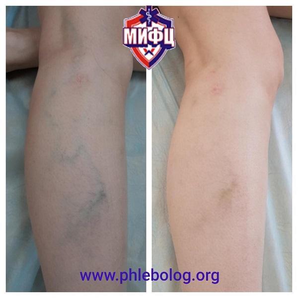 Фото до и после склеротерапии (склерозирования) варикозно расширенных вен на ногах