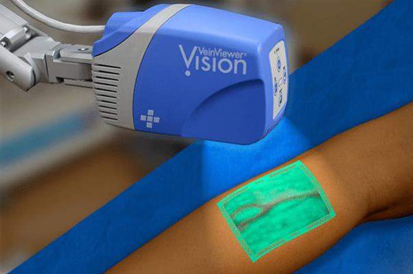 Using modern vein imaging techniques - vein viewer