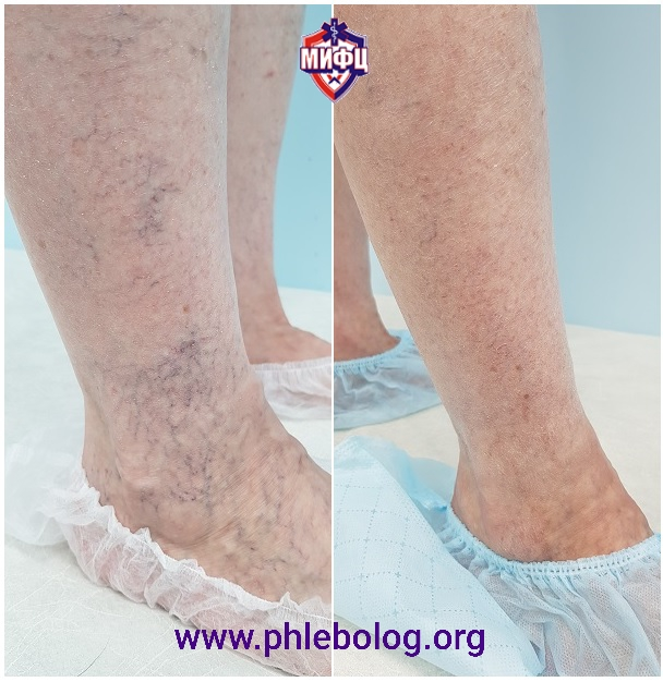 The result of removing spider veins on the legs after 3 months