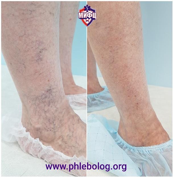 Il risultato della rimozione delle vene dei ragni sulle gambe dopo 3 mesi