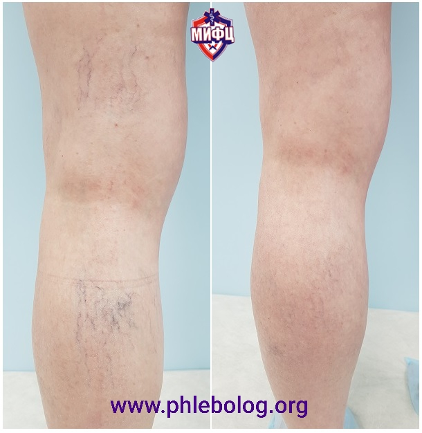 The result of removing spider veins in our center after 2 months