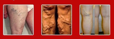 Stage varicose veins of the lower extremities