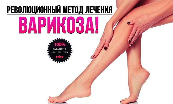 Treatment of varicose veins without surgery