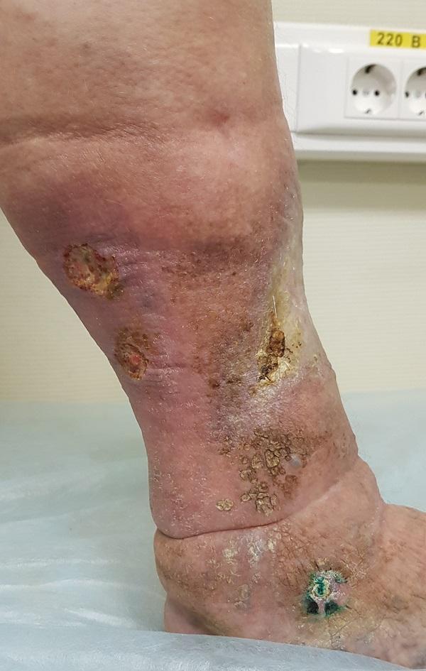 Множественные трофические язвы на ноге