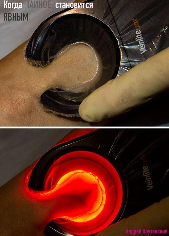Modern imaging devices for varicose veins