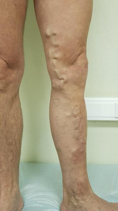 varicose veins of the left lower limb