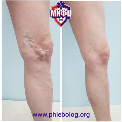Treatment of varicose veins in the knee area with Varadi miniflebectomy