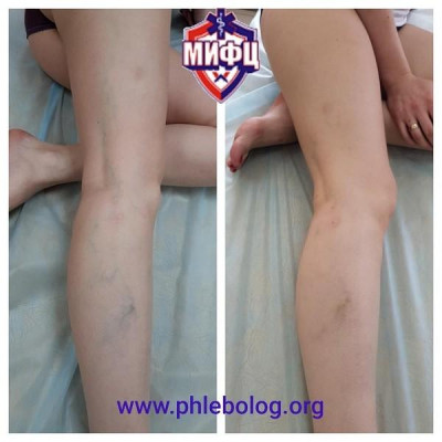 Removal of the reticular veins on the legs using foam sclerotherapy