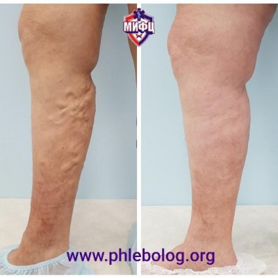 Treatment of varicose veins with no trace radio frequency