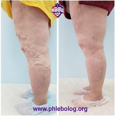 Treatment for varicose veins without surgery