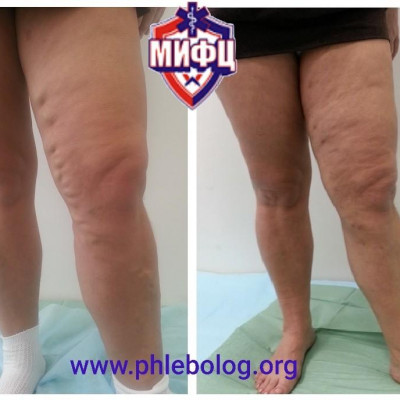Treatment of advanced varicose veins with EVLO - laser obliteration