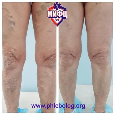 Laser treatment of varicose veins in both lower extremities