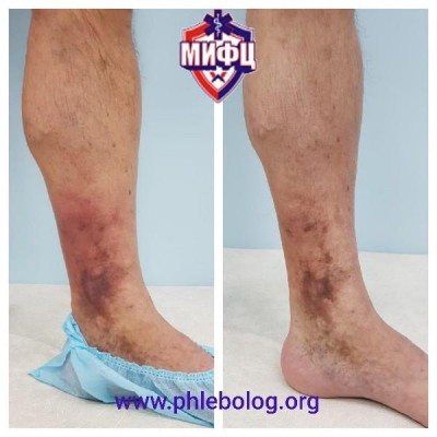Treatment of acute thrombosis with trophic eczema