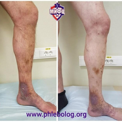 Laser trophic ulcer treatment