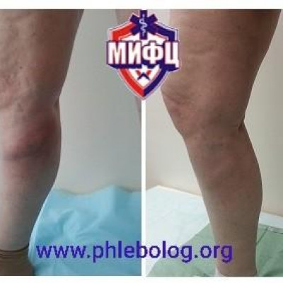 Treatment of varicothrombophlebitis in the BPV pool on the right