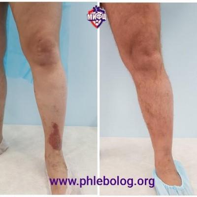 Trophic eczema - laser treatment without surgery