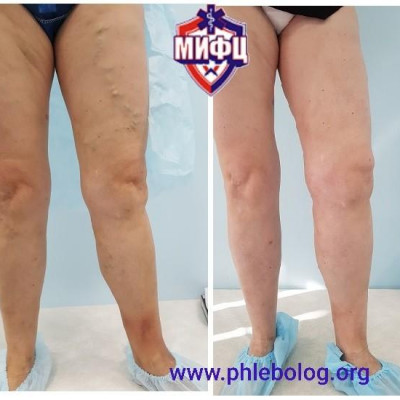 Treatment of trophic eczema with a laser and miniflebectomy