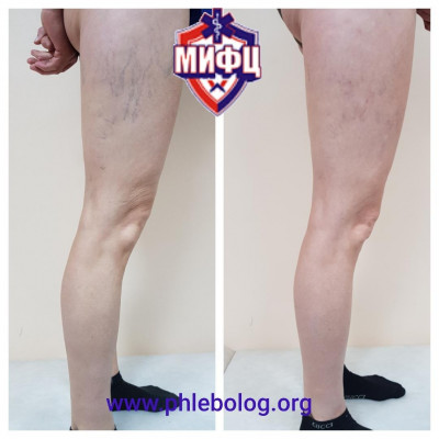 Removal of spider veins using microsclerotherapy
