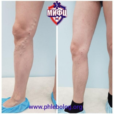 Treatment of male varicose veins on the right leg