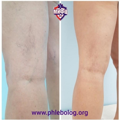 An excellent result of microsclerotherapy of spider veins on the legs