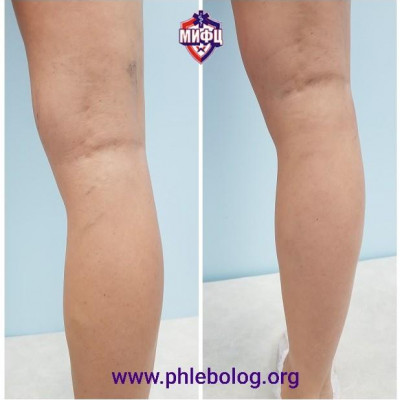 The result of the removal of the reticular veins on the lower leg