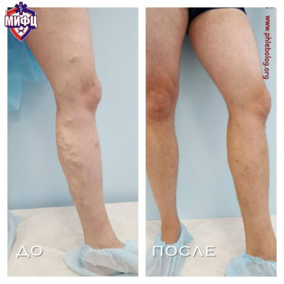 Treatment of varicose veins with miniflebectomy according to Varadi