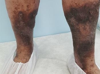Tratamentul varicelor la stupino
