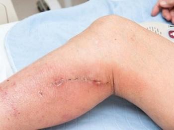 Phlebectomy - ceea ce este, tehnica și modul de funcționare
