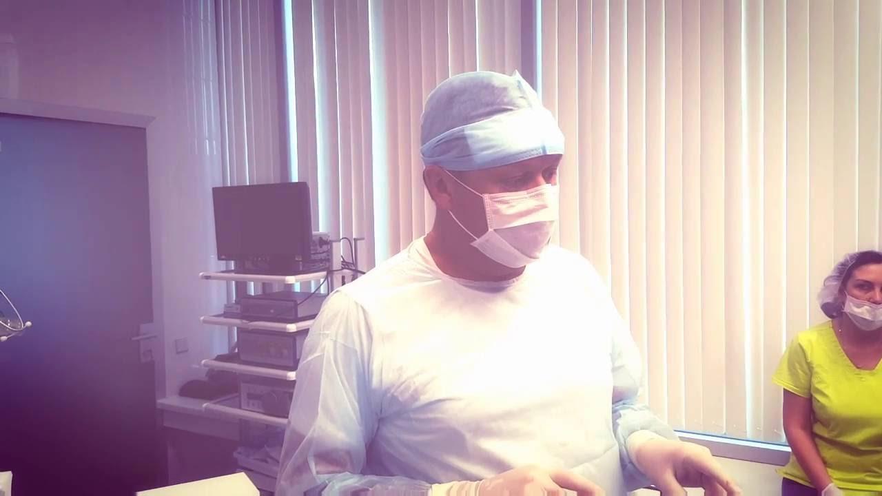 RFA - ablazione con radiofrequenza per le vene varicose degli arti inferiori